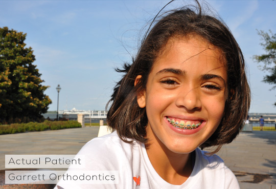 Early Ortho Treatment North Charleston and Mt Pleasant